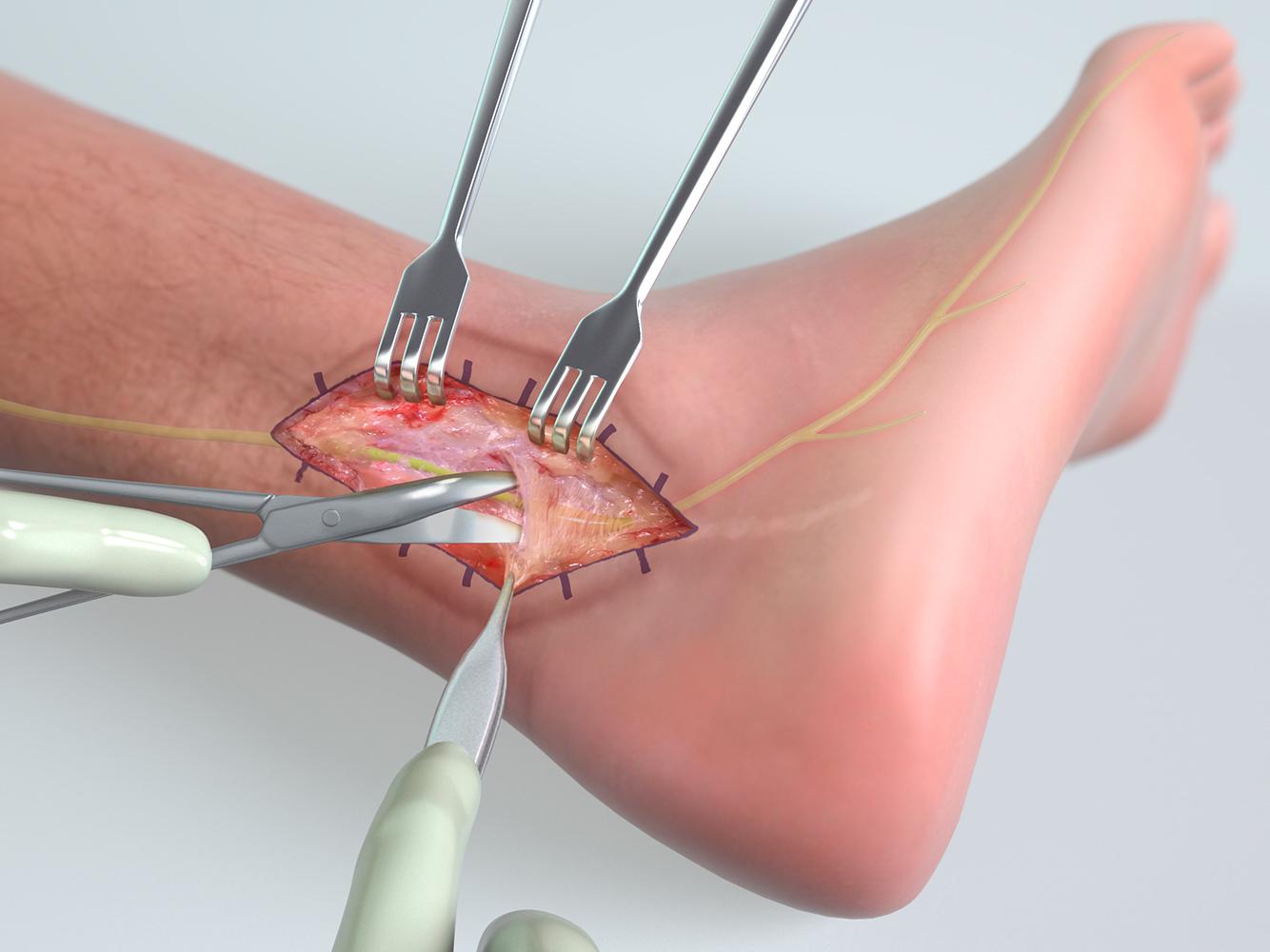Sural nerve surgery