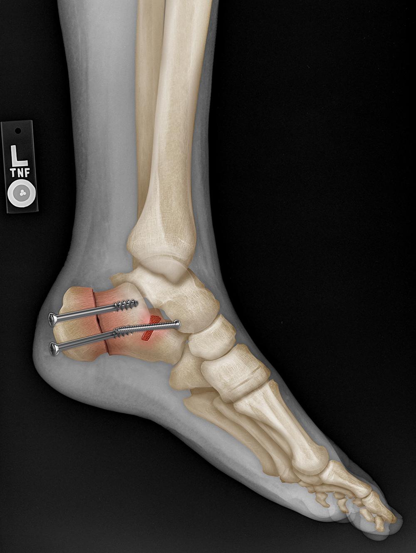 X-ray: osteotomy