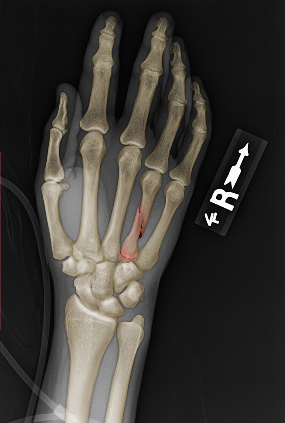 X-ray: metacarpal fracture