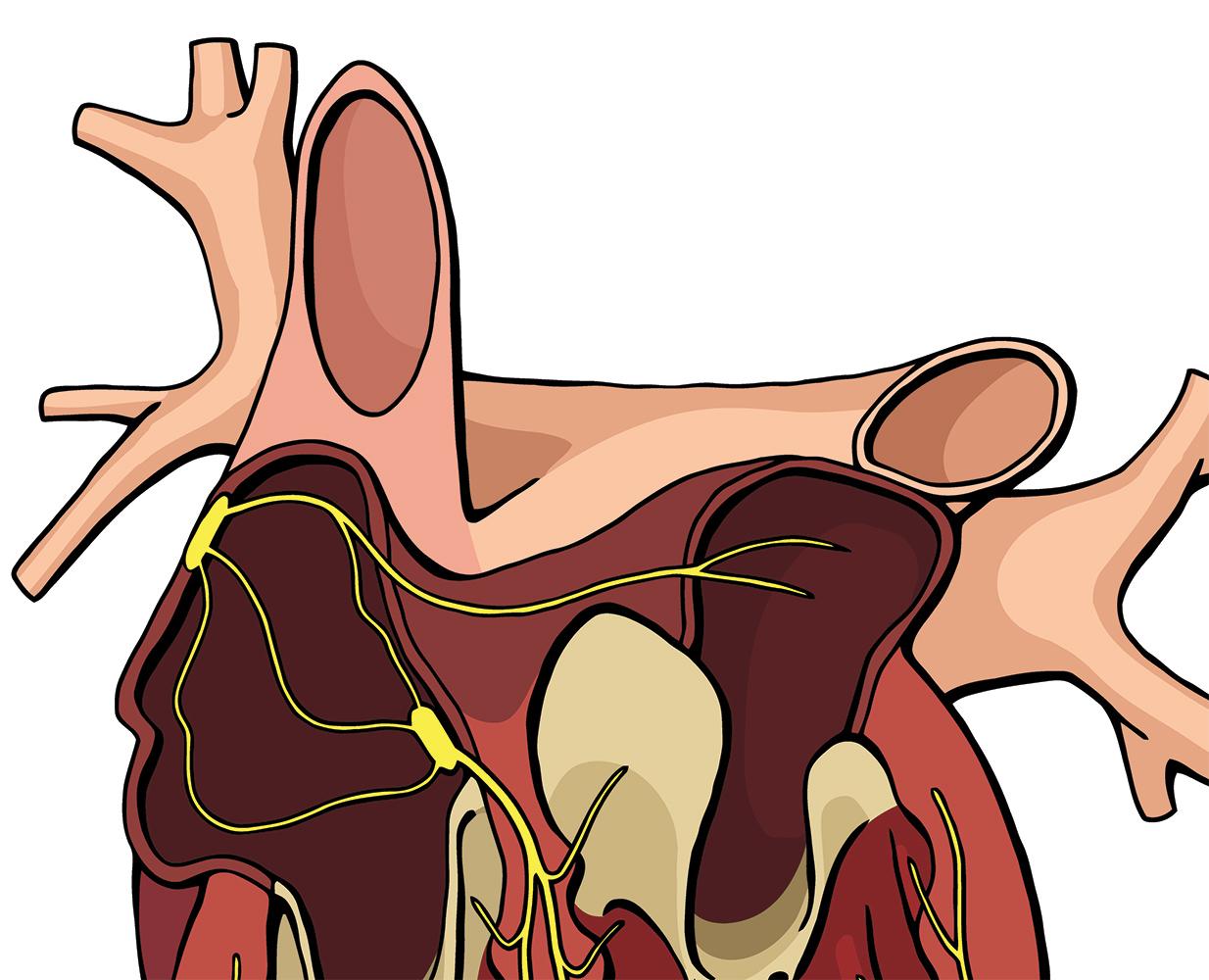 Heart: EKGs